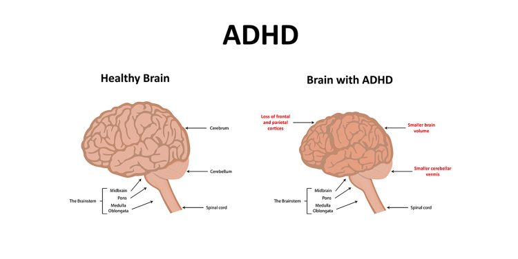 ADHD and School ADHD Brain