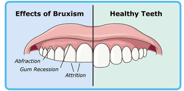 Vyvanse Side Effects Bruxism