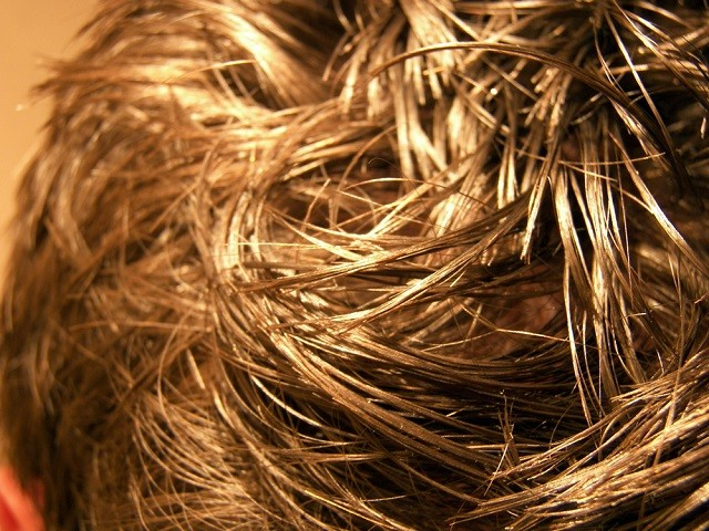 Does Vyvanse Cause Hair Loss Extremely Rare Side Effect