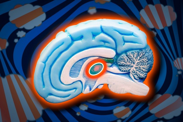 What is ADHD Thalamic Reticular Nucleus