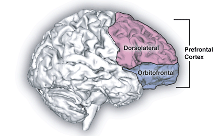 ADHD and Alcohol Alters Prefrontal Cortex